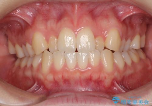 前歯のクロスバイトをインビザライン矯正で改善の治療前