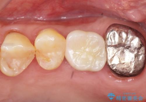 奥歯のインプラント ソケットリフト 60代男性の症例 治療後