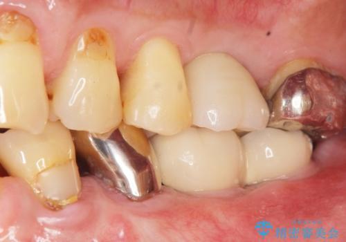 奥歯のインプラント ソケットリフト 60代男性の治療後