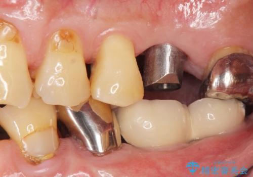 奥歯のインプラント ソケットリフト 60代男性の治療中