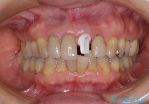 折れてしまった前歯 インプラントによる補綴治療の治療中