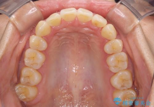 前歯のデコボコを治したい 費用を抑えた抜歯矯正の治療後