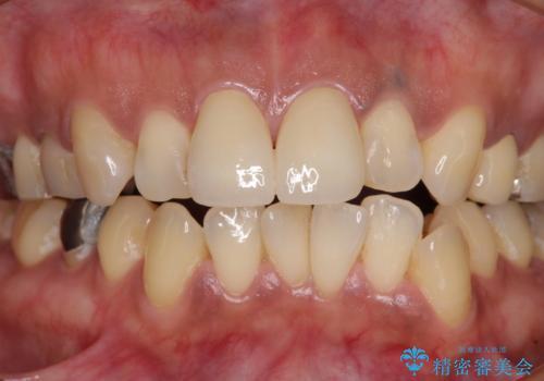 度重なる治療で前歯がしみる オールセラミッククラウンによる補綴治療の治療後