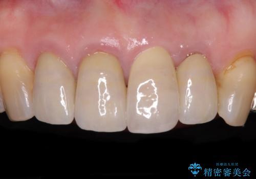 折れてしまった前歯 インプラントによる補綴治療の治療後