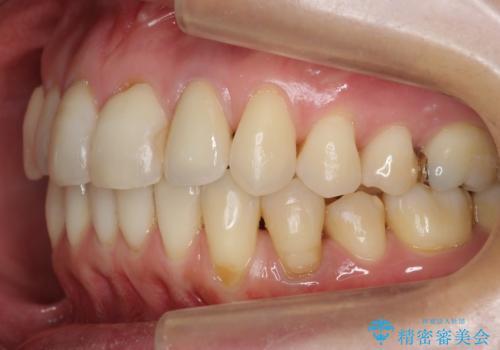 埋まっている奥歯を引っ張り出す インビザライン矯正の治療後