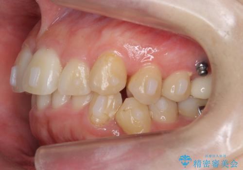 歯並びのがたつきを直したい ワイヤーは嫌 抜きたくないの治療中
