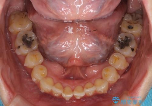 前歯のガタガタ 治療期間がかかっても良いので非抜歯でマウスピースでの治療中