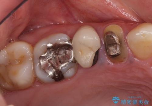 治療途中で放置していた歯 オールセラミッククラウンによる補綴治療の治療前