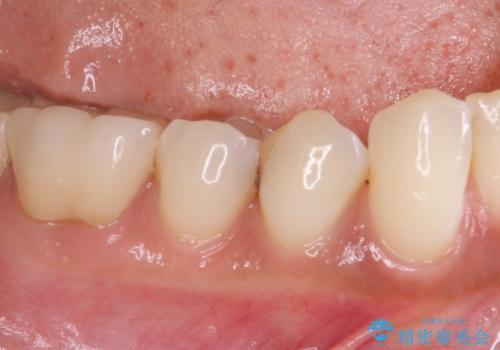 奥歯がしみる セラミックインレーによるむし歯治療の治療前