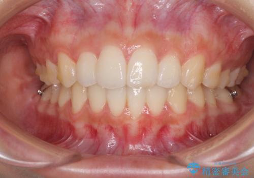 前歯のデコボコと突出感 インビザラインで改善の治療中