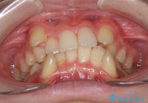 気になる八重歯を治したい ワイヤー装置での抜歯矯正の治療前