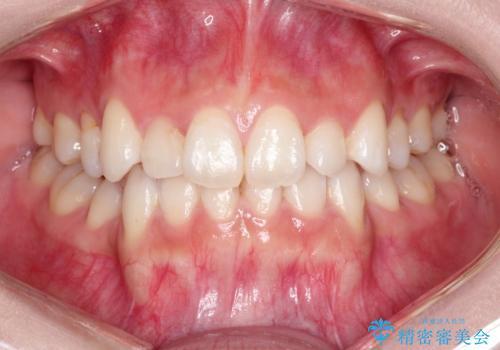 前歯の後戻りを部分矯正で整った歯並びへの症例 治療前