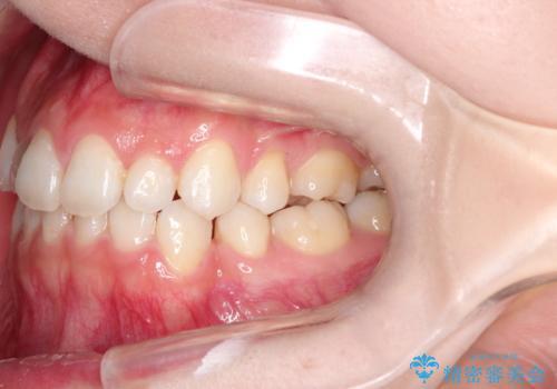 前歯の後戻りを部分矯正で整った歯並びへの治療前