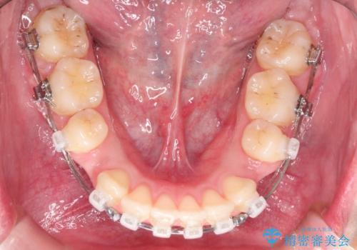 [口ゴボ] 口元が出ているのが気になる ワイヤーによる抜歯矯正で口元をすっきりとの治療中