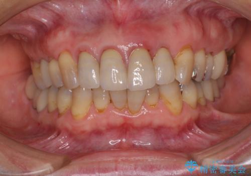 折れてしまった前歯 インプラントによる補綴治療の治療前