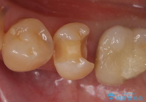 セラミックインレー 気になる銀歯を白くの治療中
