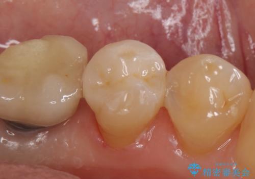 セラミックインレー 気になる銀歯を白くの治療後