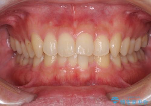 前歯の咬み合わせとデコボコを解消 インビザラインによる矯正治療の治療前