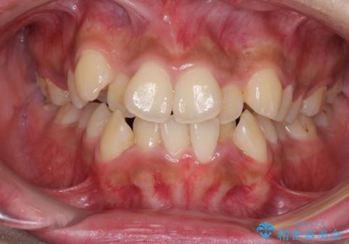 口元をスッキリと ワイヤーでの抜歯矯正の症例 治療前