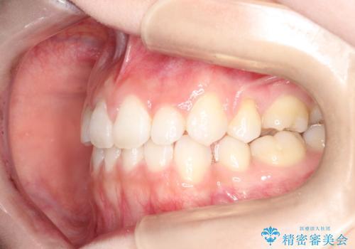前歯の後戻りを部分矯正で整った歯並びへの治療後