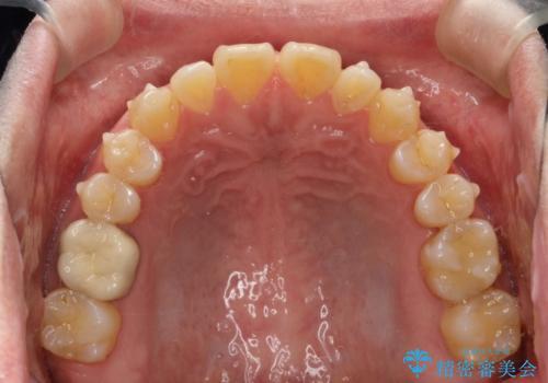 前歯の隙間 インビザラインにて整った歯並びへの治療中