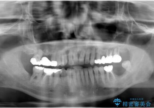 インプラントを用いた歯周病全顎治療の治療前