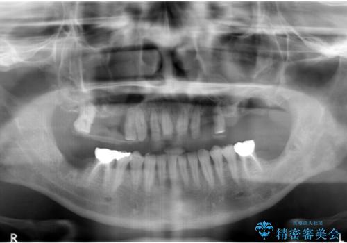 インプラントを用いた歯周病全顎治療の治療中