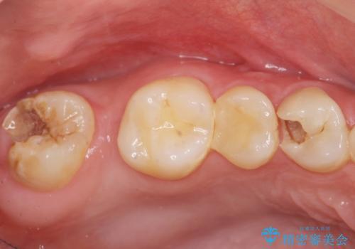 インプラントを用いた臼歯部欠損補綴の症例 治療前