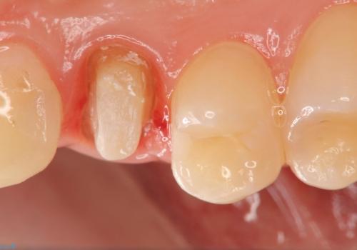 虫歯で歯が折れた セラミック審美修復の治療中