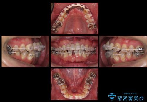 前歯ブリッジのやりかえ 下の歯のがたつき 銀歯を全てセラミックにの治療中