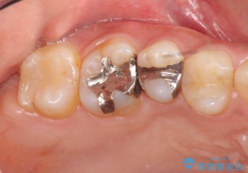 以前治療した歯が痛む 銀歯をセラミックにの症例 治療前