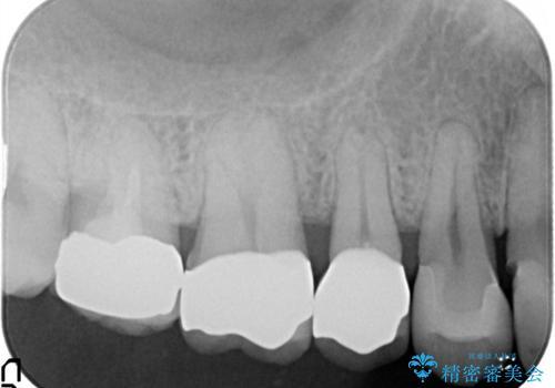 セラミッククラウン。虫歯の治療の治療後
