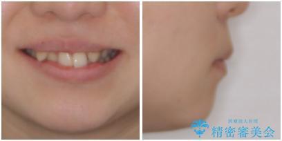 気になる八重歯を治したい ワイヤー装置での抜歯矯正の治療前(顔貌)