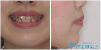 口元をスッキリと ワイヤーでの抜歯矯正の治療前(顔貌)