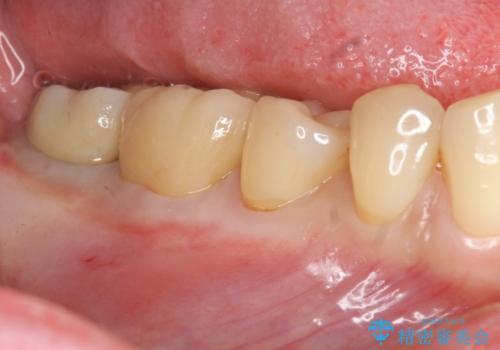 抜歯時歯槽堤保存術を用いた骨造成・インプラント治療の治療後