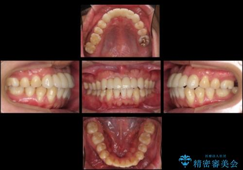 前歯ブリッジのやりかえ 下の歯のがたつき 銀歯を全てセラミックにの症例 治療後