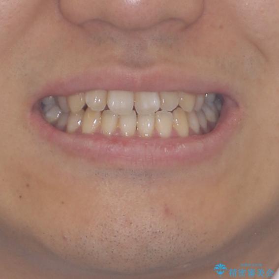 下顎前歯と上顎の部分矯正の治療前(顔貌)