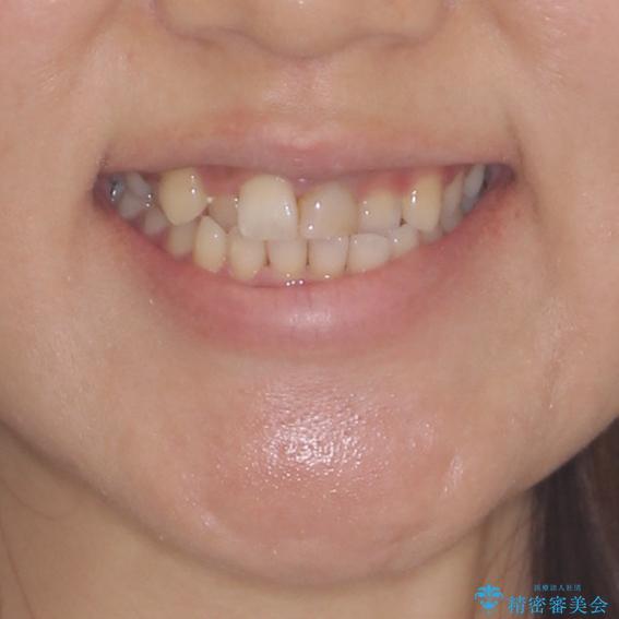 前歯のクロスバイトと変色した歯 ワイヤー矯正とセラミック治療の治療前(顔貌)