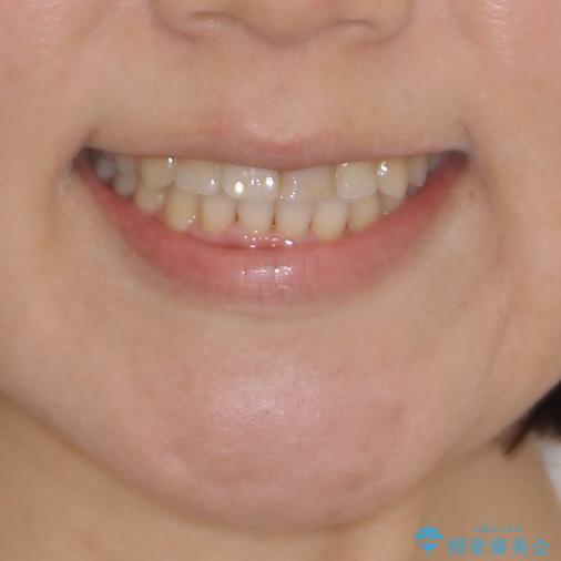 前歯のクロスバイトと変色した歯 ワイヤー矯正とセラミック治療の治療後(顔貌)