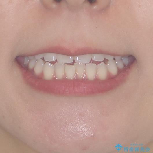 前歯のオープンバイトを治したい インビザラインでの矯正治療の治療前(顔貌)
