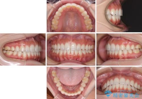 前歯のオープンバイトを治したい インビザラインでの矯正治療の治療後