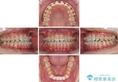 下顎前歯と上顎の部分矯正の治療中