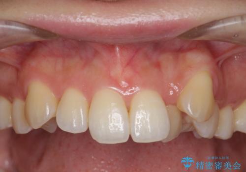[[ 八重歯 ]] マウスピース部分矯正による改善の症例 治療前