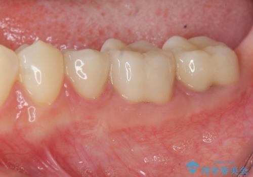 深い虫歯 歯周外科を併用した精度の高い補綴治療の症例 治療後