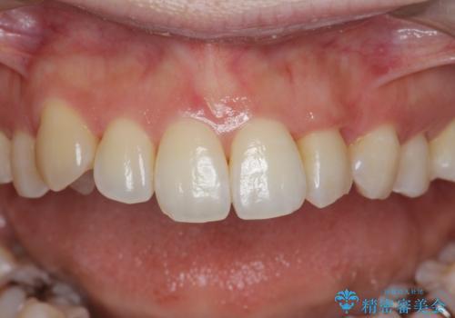 [[ 八重歯 ]] マウスピース部分矯正による改善の症例 治療後