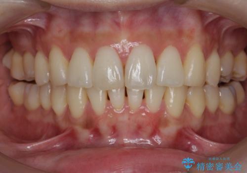 [[ インビザライン ライト ]]  下がってしまった歯ぐきを元に戻したいの治療後