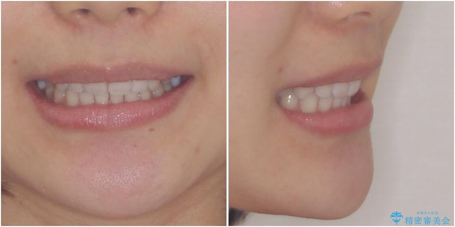 深い咬み合わせと奥歯のむし歯 総合歯科治療の治療後(顔貌)