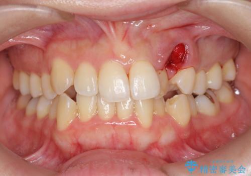 [[ 八重歯 ]] マウスピース部分矯正による改善の治療中
