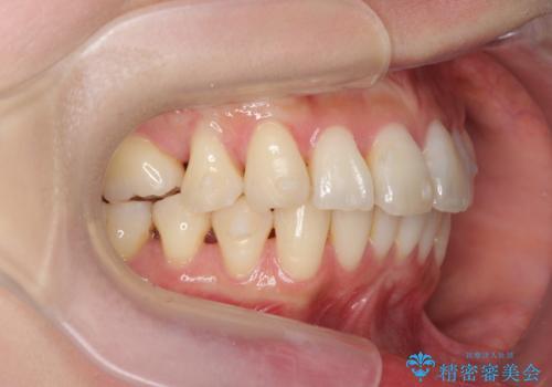 [[ インビザライン ライト ]]  下がってしまった歯ぐきを元に戻したいの治療中