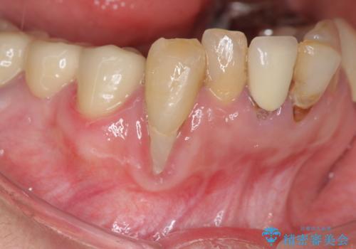 吸収した骨の再生 前歯部インプラント治療の治療前